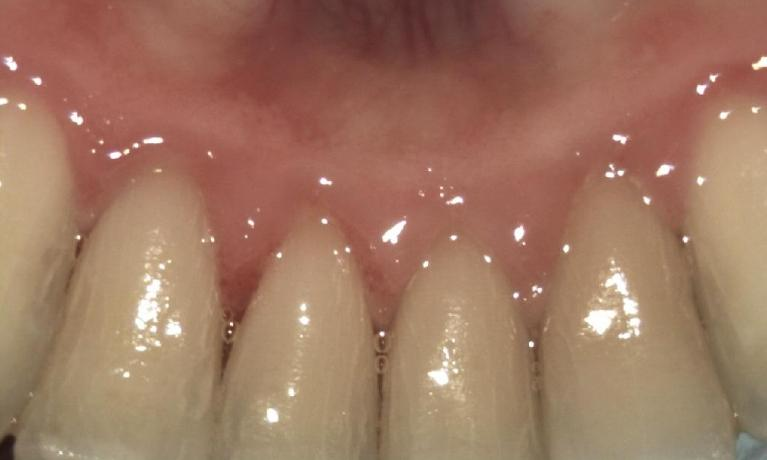 Periodontal-Treatment-After-Image
